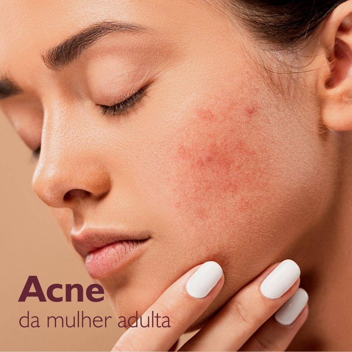 acne-da-mulher-adulta.jpg